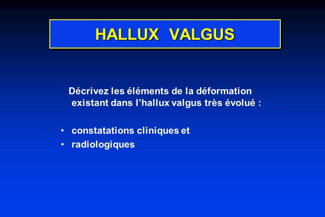 HALLUX VALGUS Décrivez les éléments de la déformation existant dans lhallux valgus très évolué : constatations cliniques et radiologiques