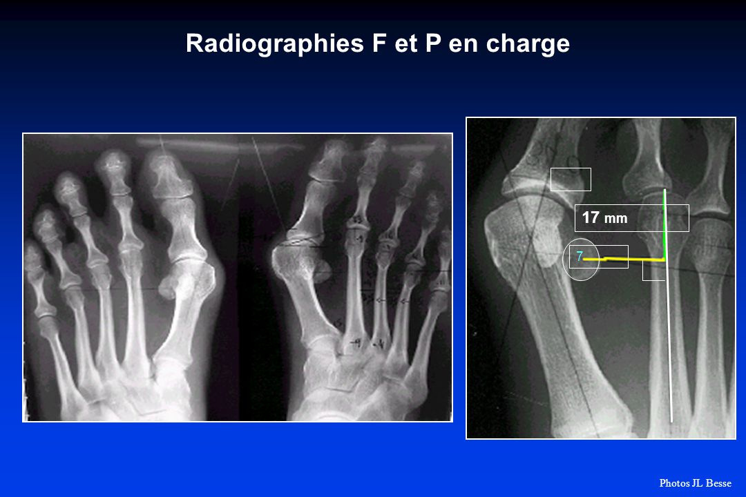 Radiographies F et P en charge 7 17 mm Photos JL Besse