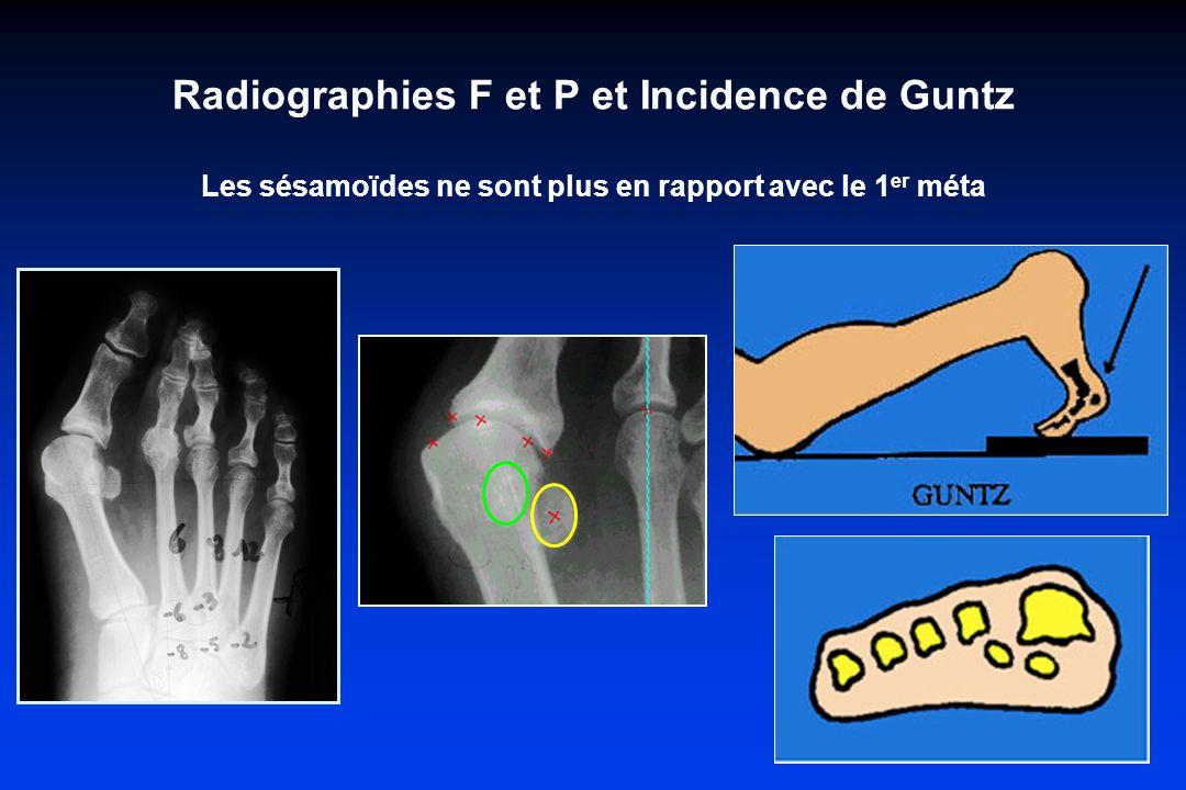 Radiographies F et P et Incidence de Guntz Les sésamoïdes ne sont plus en rapport avec le 1 er méta