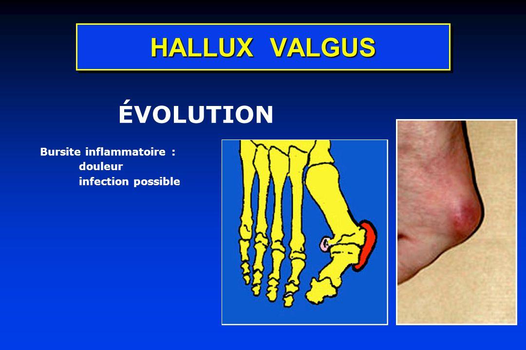 HALLUX VALGUS ÉVOLUTION Bursite inflammatoire : douleur infection possible