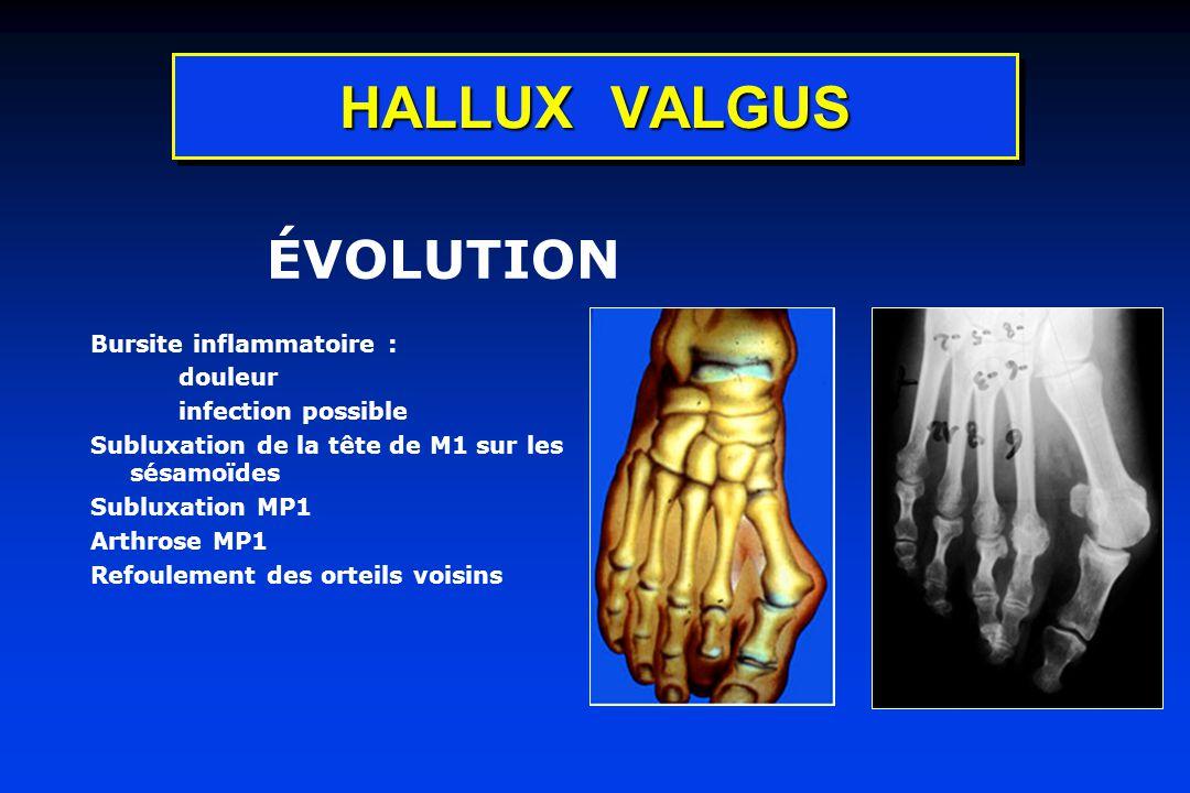 HALLUX VALGUS ÉVOLUTION Bursite inflammatoire : douleur infection possible Subluxation de la tête de M1 sur les sésamoïdes Subluxation MP1 Arthrose MP1 Refoulement des orteils voisins