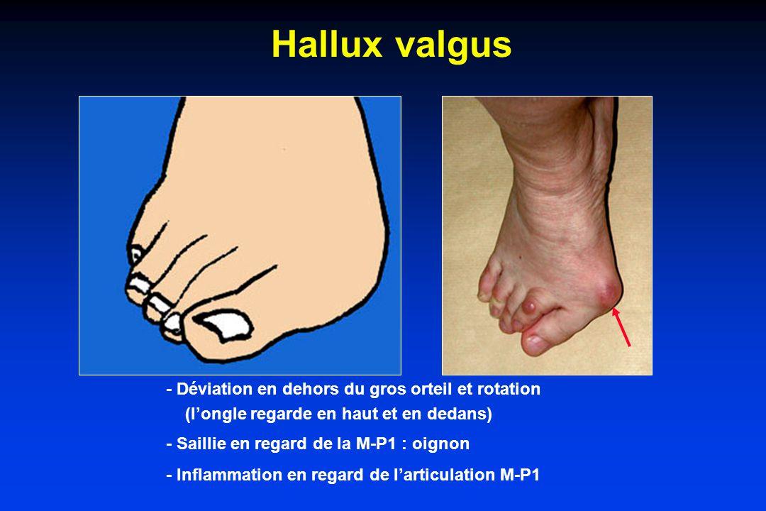 Hallux valgus - Déviation en dehors du gros orteil et rotation (longle regarde en haut et en dedans) - Saillie en regard de la M-P1 : oignon - Inflammation en regard de larticulation M-P1