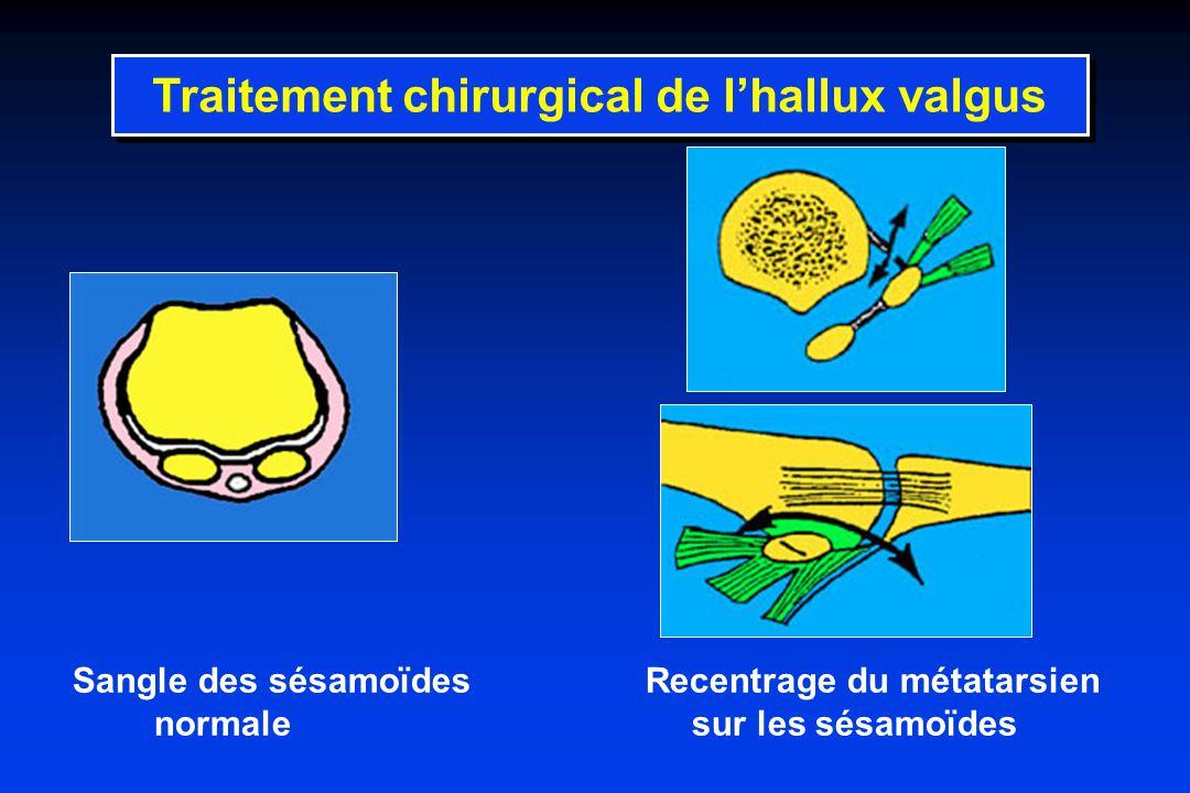 Sangle des sésamoïdes Recentrage du métatarsien normale sur les sésamoïdes Traitement chirurgical de lhallux valgus