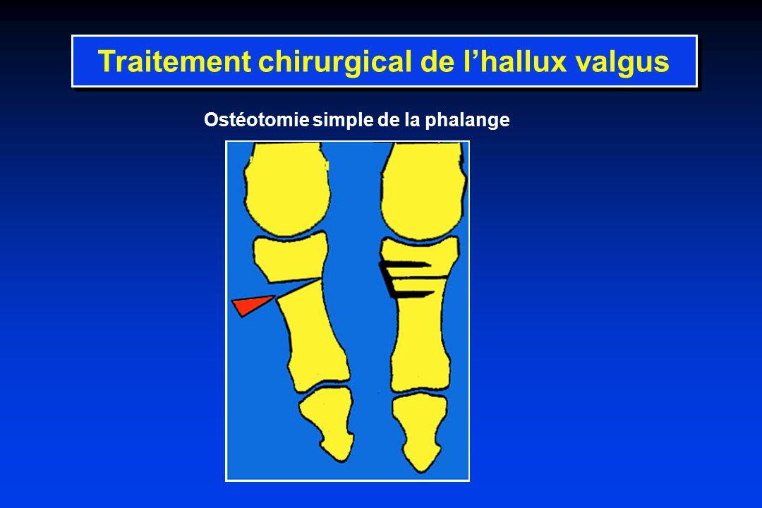 Ostéotomie simple de la phalange Traitement chirurgical de lhallux valgus