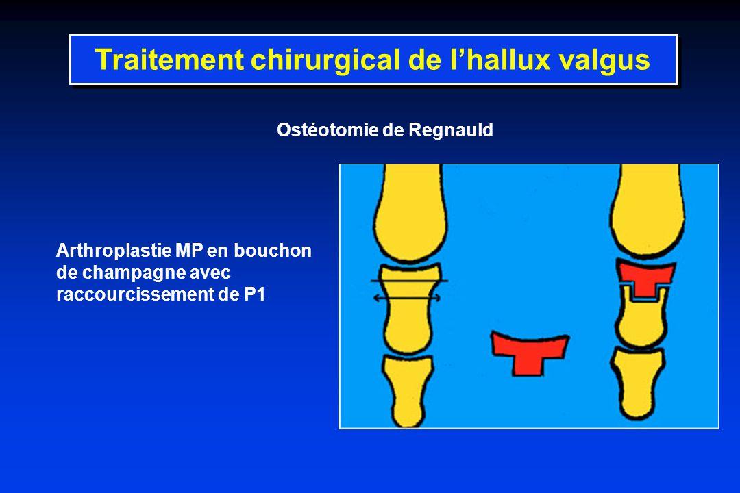 Ostéotomie de Regnauld Arthroplastie MP en bouchon de champagne avec raccourcissement de P1 Traitement chirurgical de lhallux valgus