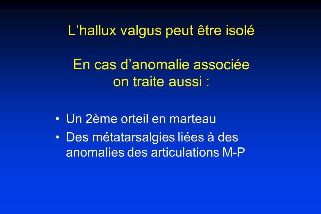 Lhallux valgus peut être isolé En cas danomalie associée on traite aussi : Un 2ème orteil en marteau Des métatarsalgies liées à des anomalies des articulations M-P