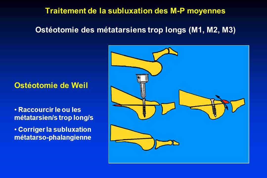 Traitement de la subluxation des M-P moyennes Ostéotomie des métatarsiens trop longs (M1, M2, M3) Ostéotomie de Weil Raccourcir le ou les métatarsien/s trop long/s Corriger la subluxation métatarso-phalangienne
