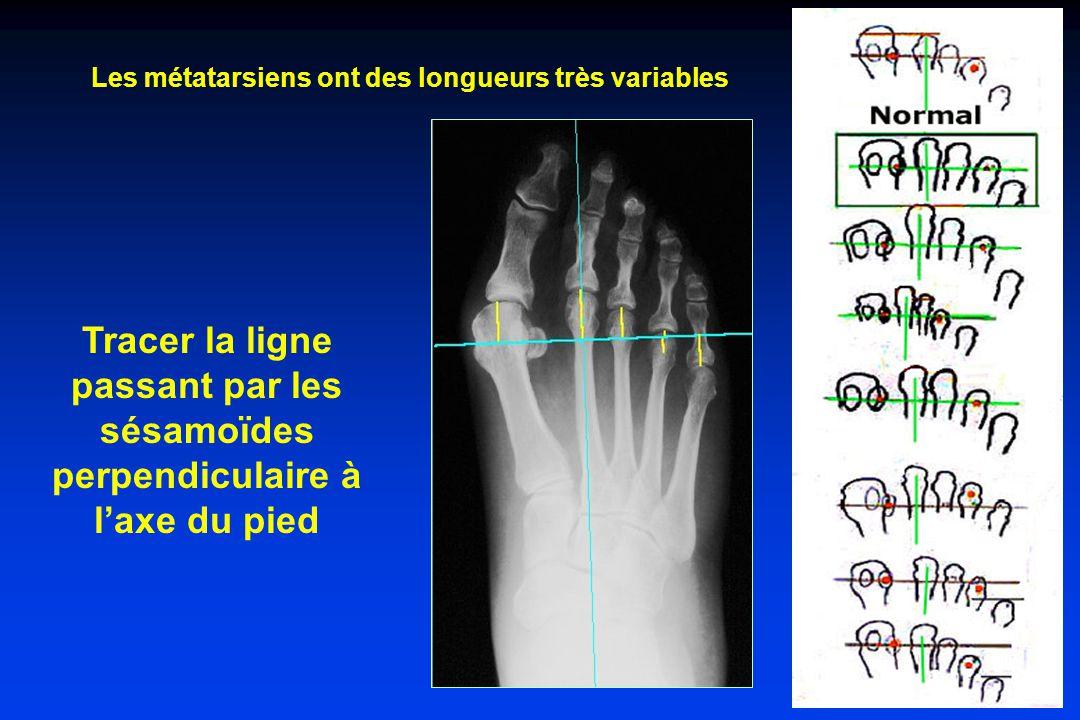 Tracer la ligne passant par les sésamoïdes perpendiculaire à laxe du pied