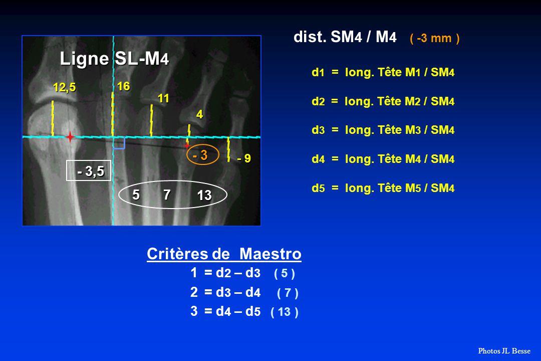 d 1 = long.Tête M 1 / SM 4 d 2 = long. Tête M 2 / SM 4 d 3 = long.