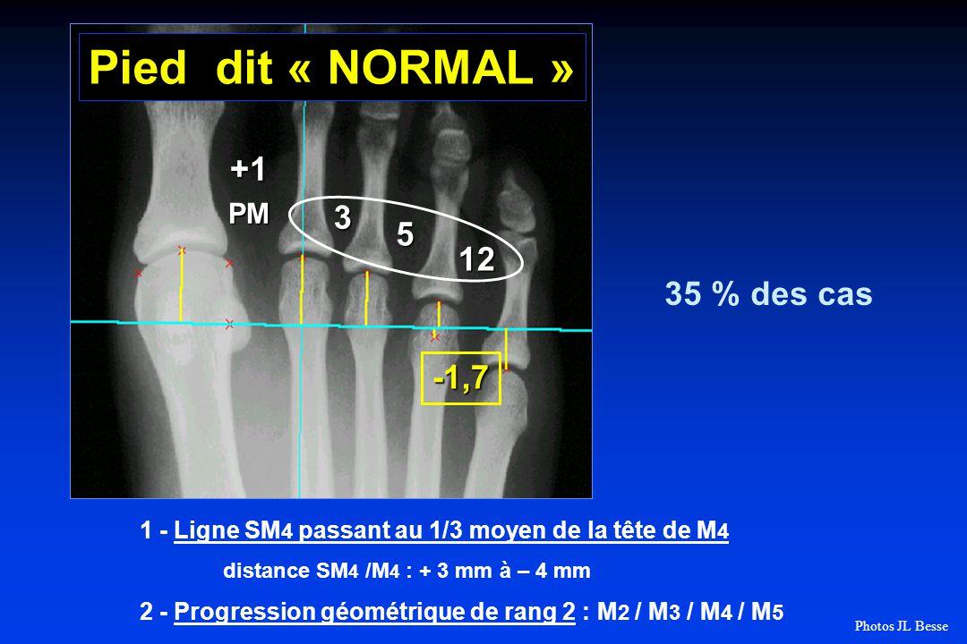 +1PM 3 5 12 -1,7 Pied dit « NORMAL » 35 % des cas 1 - Ligne SM 4 passant au 1/3 moyen de la tête de M 4 distance SM 4 /M 4 : + 3 mm à – 4 mm 2 - Progression géométrique de rang 2 : M 2 / M 3 / M 4 / M 5 Photos JL Besse