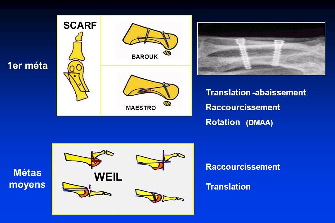 WEIL Translation -abaissement Raccourcissement Rotation (DMAA) Raccourcissement Translation SCARF BAROUK MAESTRO 1er méta Métas moyens