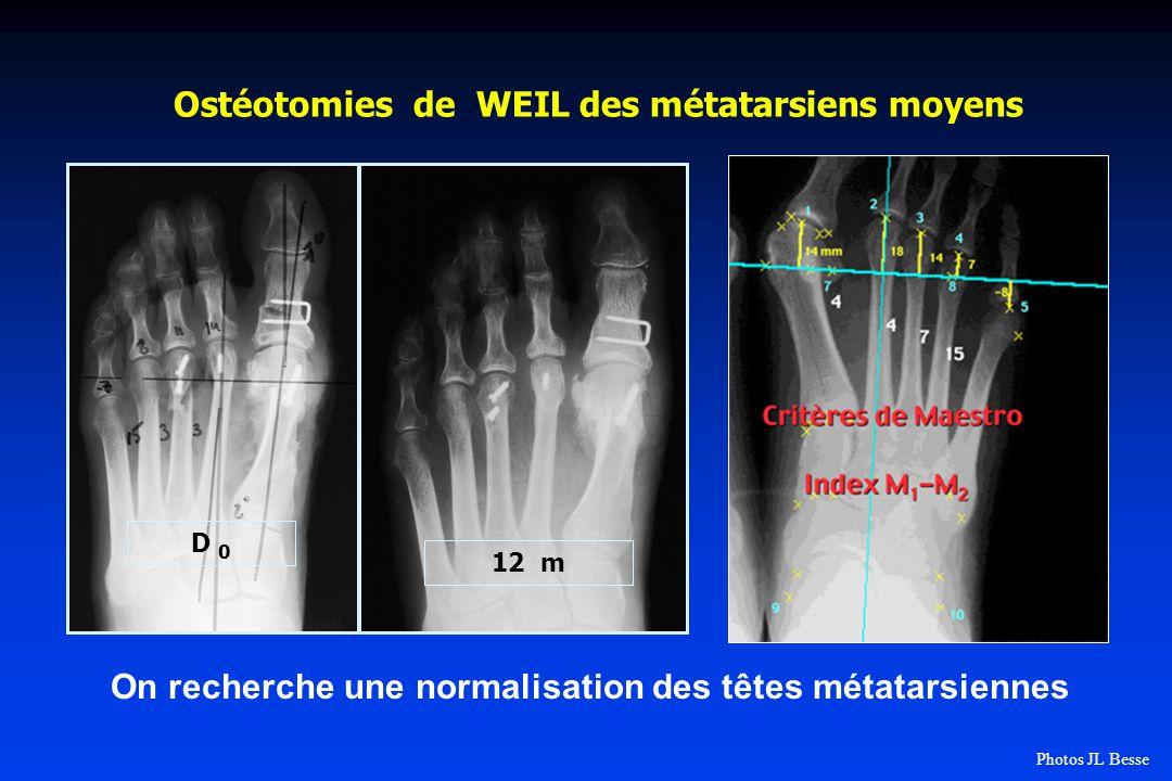 Ostéotomies de WEIL des métatarsiens moyens D 0 12 m On recherche une normalisation des têtes métatarsiennes Photos JL Besse