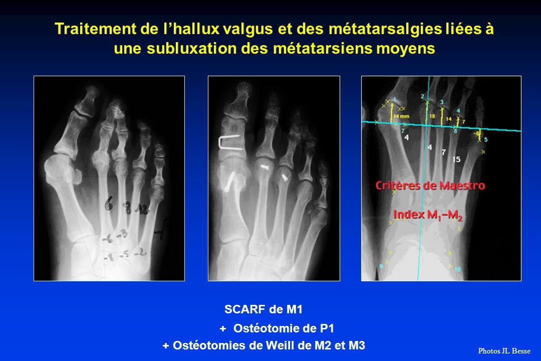 SCARF de M1 + Ostéotomie de P1 + Ostéotomies de Weill de M2 et M3 Traitement de lhallux valgus et des métatarsalgies liées à une subluxation des métatarsiens moyens Photos JL Besse
