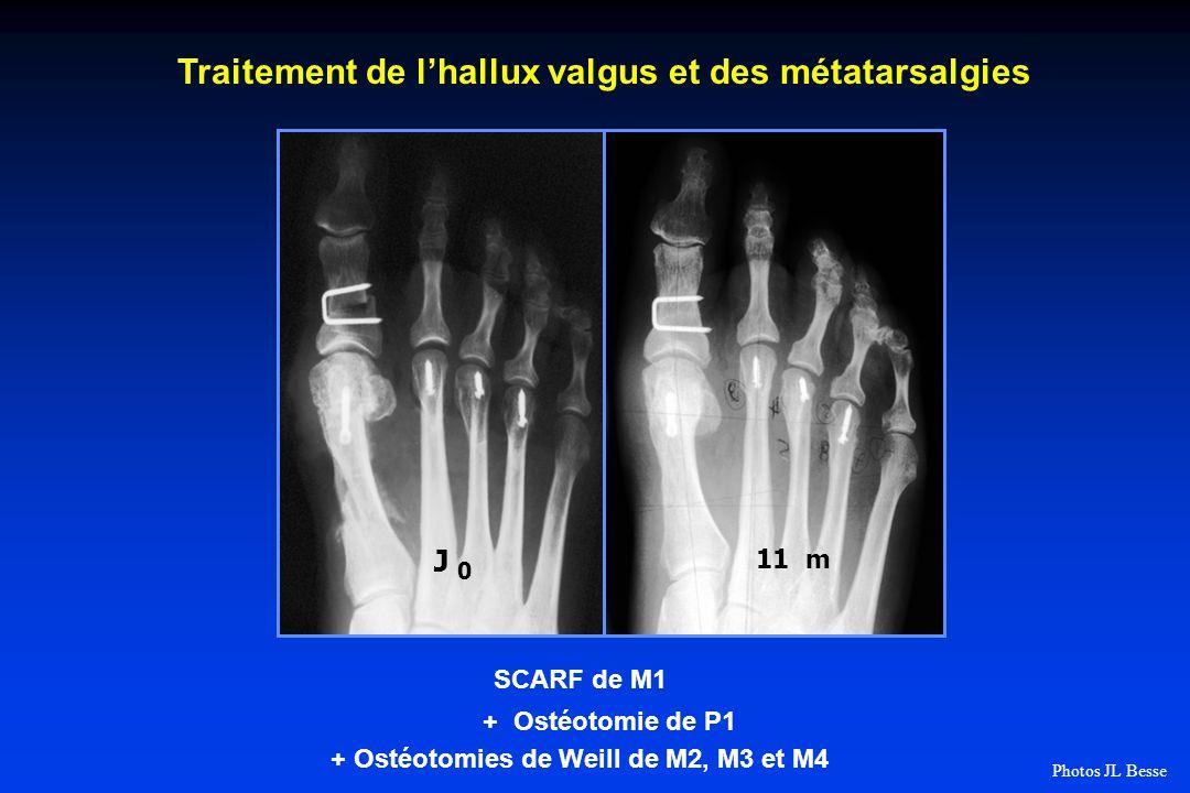 11 m J 0 Traitement de lhallux valgus et des métatarsalgies SCARF de M1 + Ostéotomie de P1 + Ostéotomies de Weill de M2, M3 et M4 Photos JL Besse