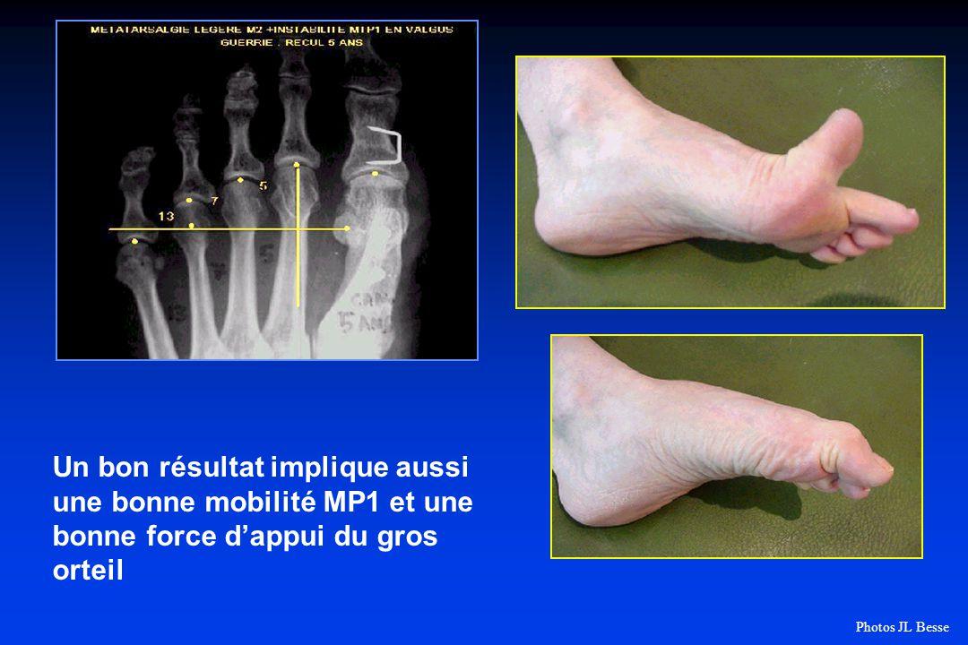 Un bon résultat implique aussi une bonne mobilité MP1 et une bonne force dappui du gros orteil Photos JL Besse