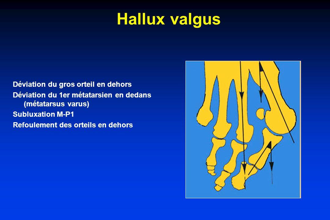 Hallux valgus Déviation du gros orteil en dehors Déviation du 1er métatarsien en dedans (métatarsus varus) Subluxation M-P1 Refoulement des orteils en dehors