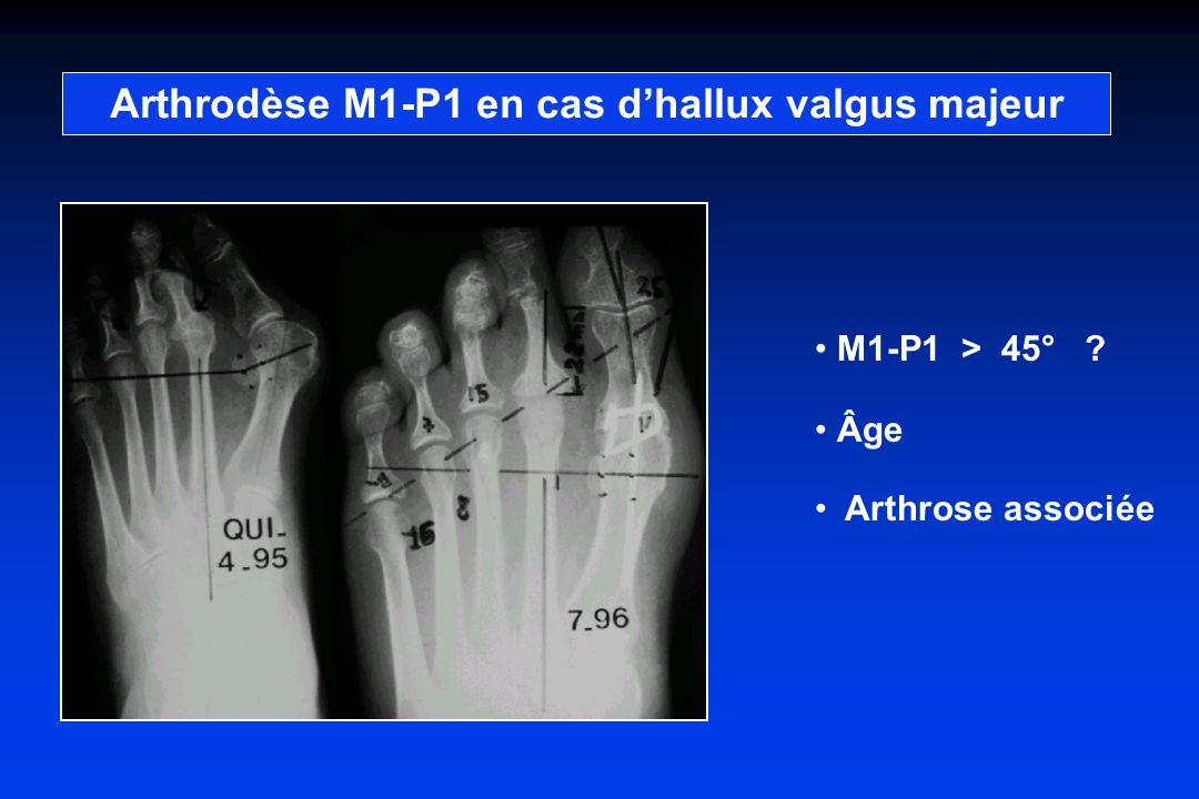 Arthrodèse M1-P1 en cas dhallux valgus majeur M1-P1 > 45° ? Âge Arthrose associée