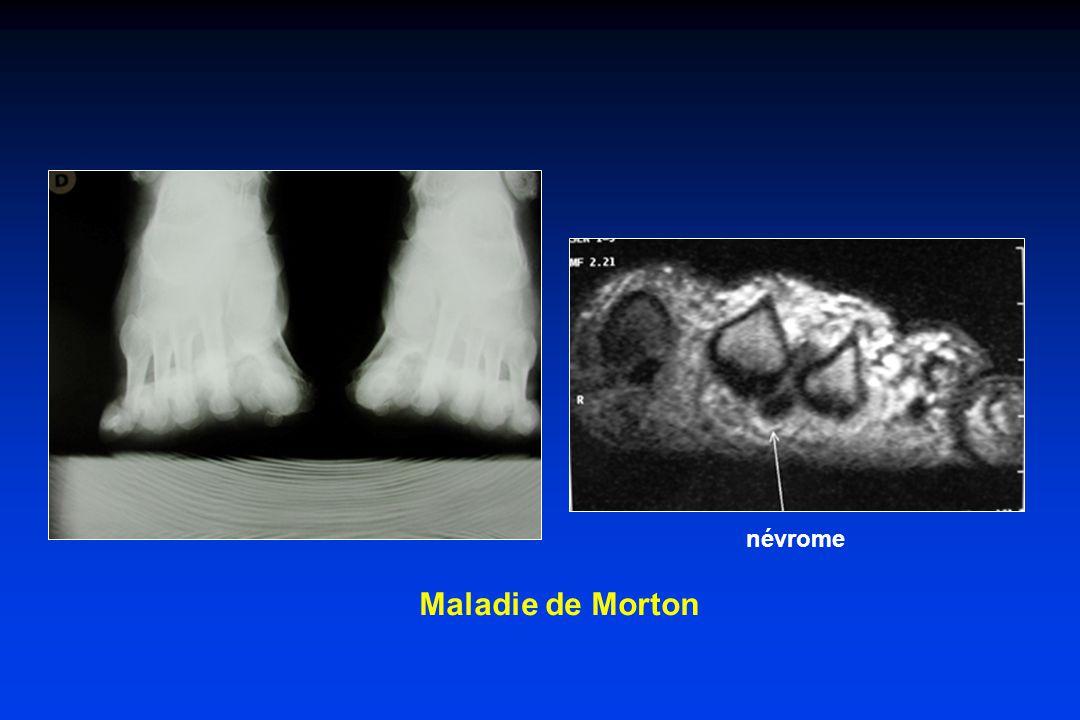 Maladie de Morton névrome