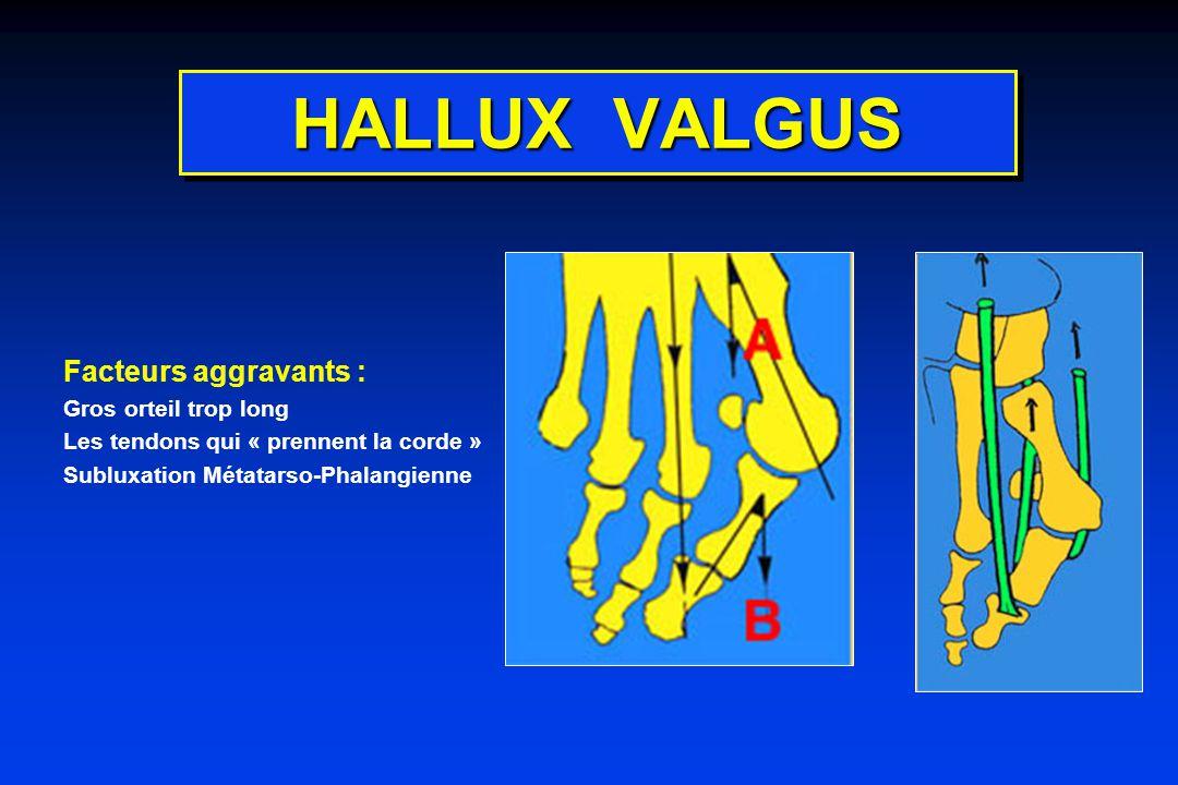 HALLUX VALGUS Facteurs aggravants : Gros orteil trop long Les tendons qui « prennent la corde » Subluxation Métatarso-Phalangienne
