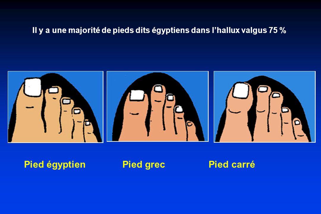 Pied égyptien Pied grec Pied carré Il y a une majorité de pieds dits égyptiens dans lhallux valgus 75 %