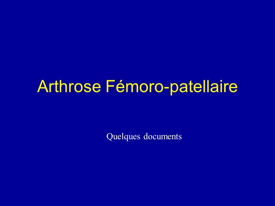 Arthrose Fémoro-patellaire Quelques documents