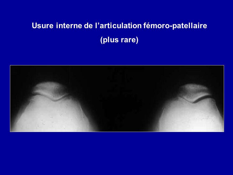 Usure interne de larticulation fémoro-patellaire (plus rare)