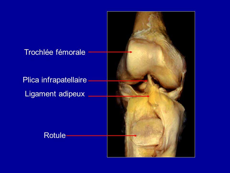 Trochlée fémorale Plica infrapatellaire Ligament adipeux Rotule