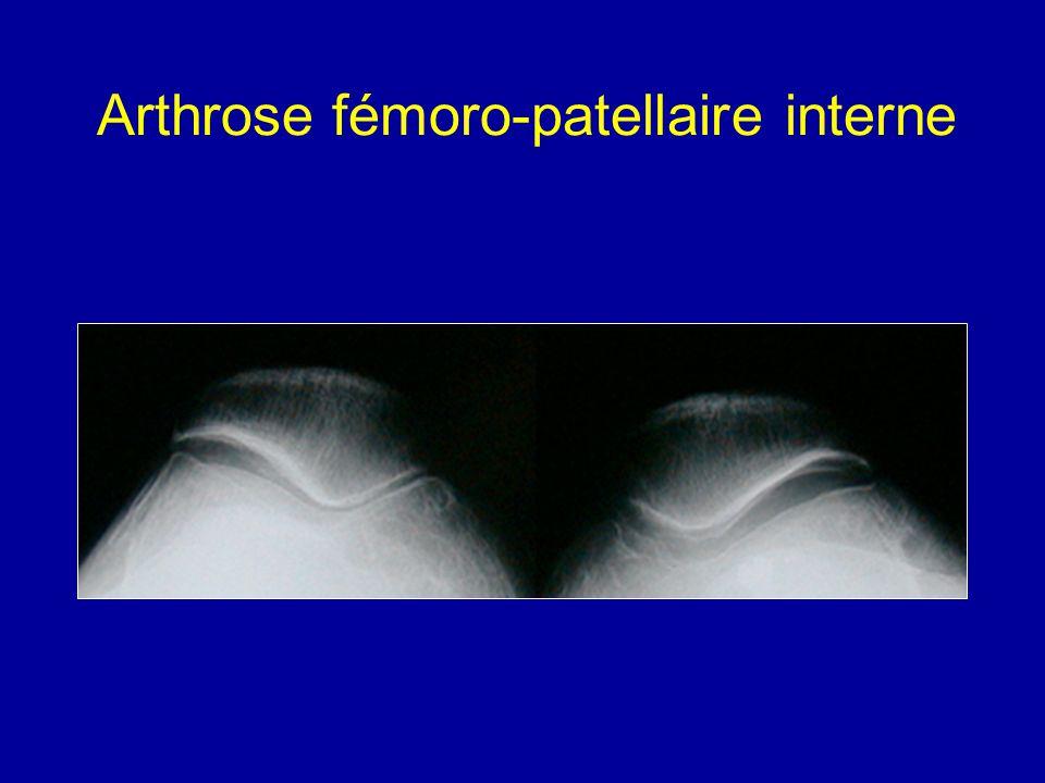 Arthrose fémoro-patellaire interne