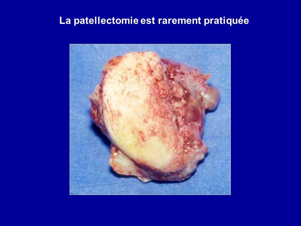 La patellectomie est rarement pratiquée