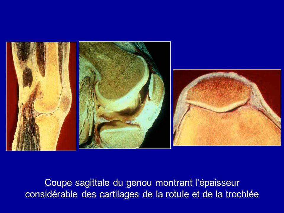 Coupe sagittale du genou montrant lépaisseur considérable des cartilages de la rotule et de la trochlée