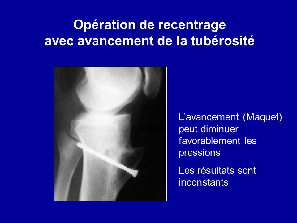 Opération de recentrage avec avancement de la tubérosité Lavancement (Maquet) peut diminuer favorablement les pressions Les résultats sont inconstants