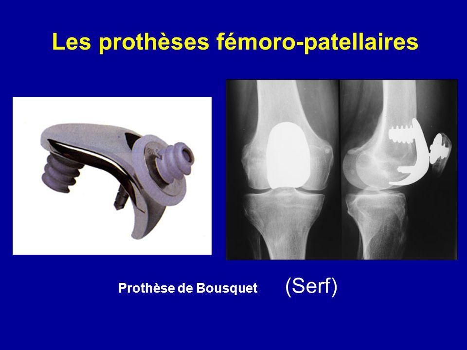 Les prothèses fémoro-patellaires Prothèse de Bousquet (Serf)