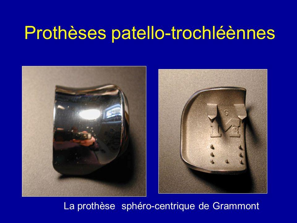La prothèse sphéro-centrique de Grammont