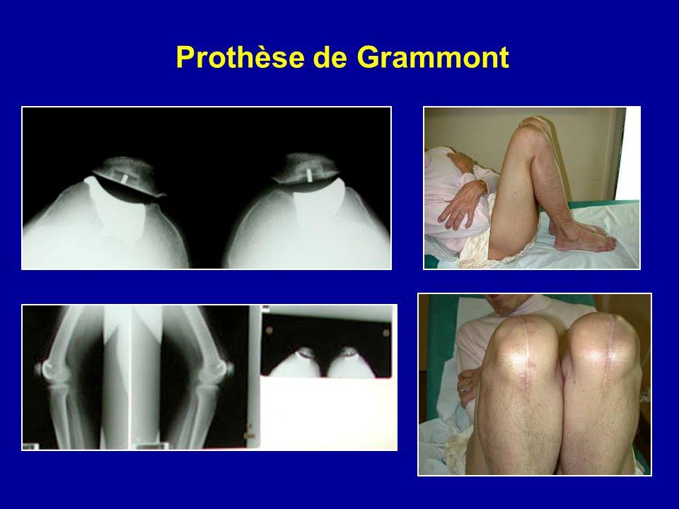 Prothèse de Grammont