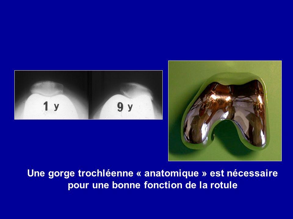 Une gorge trochléenne « anatomique » est nécessaire pour une bonne fonction de la rotule