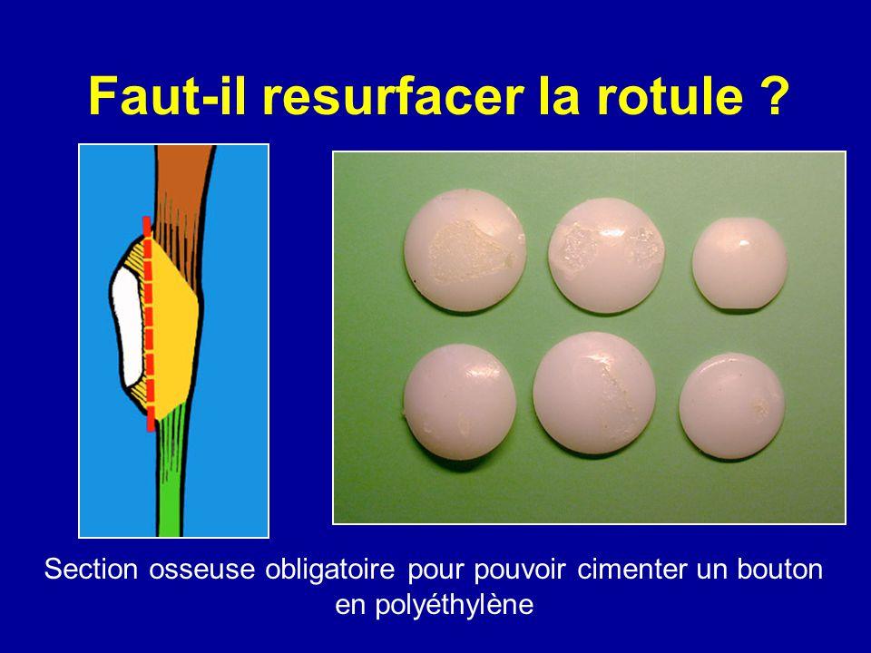 Faut-il resurfacer la rotule ? Section osseuse obligatoire pour pouvoir cimenter un bouton en polyéthylène