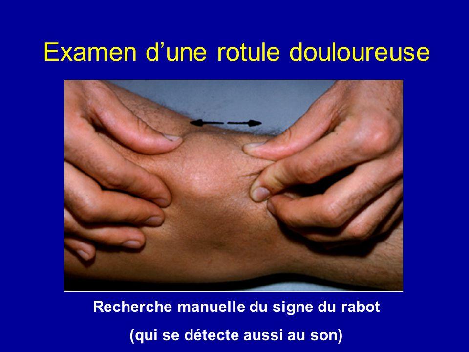IRM et arthrose fémoro-patellaire