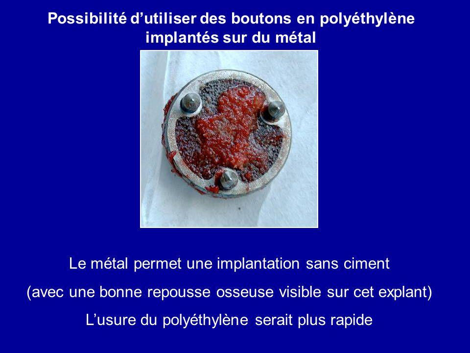 Le métal permet une implantation sans ciment (avec une bonne repousse osseuse visible sur cet explant) Lusure du polyéthylène serait plus rapide Possi