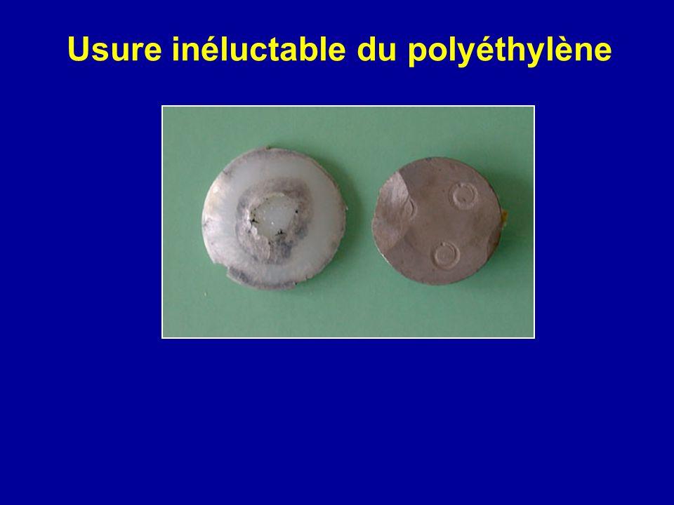 Usure inéluctable du polyéthylène