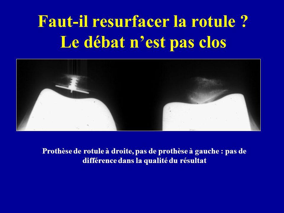 Prothèse de rotule à droite, pas de prothèse à gauche : pas de différence dans la qualité du résultat Faut-il resurfacer la rotule ? Le débat nest pas
