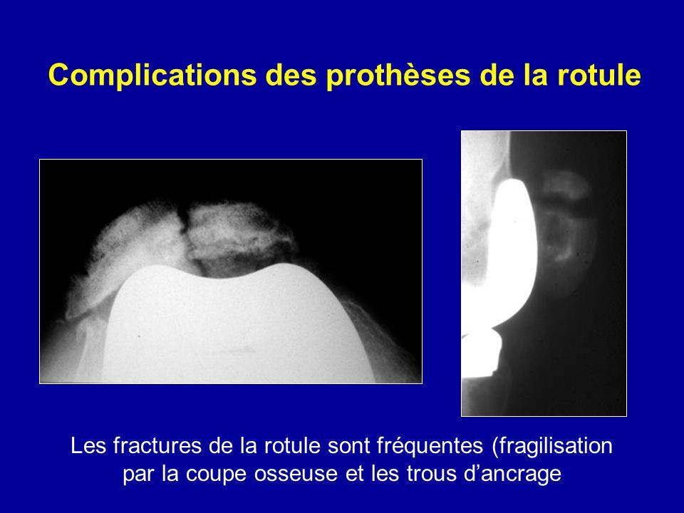 Complications des prothèses de la rotule Les fractures de la rotule sont fréquentes (fragilisation par la coupe osseuse et les trous dancrage