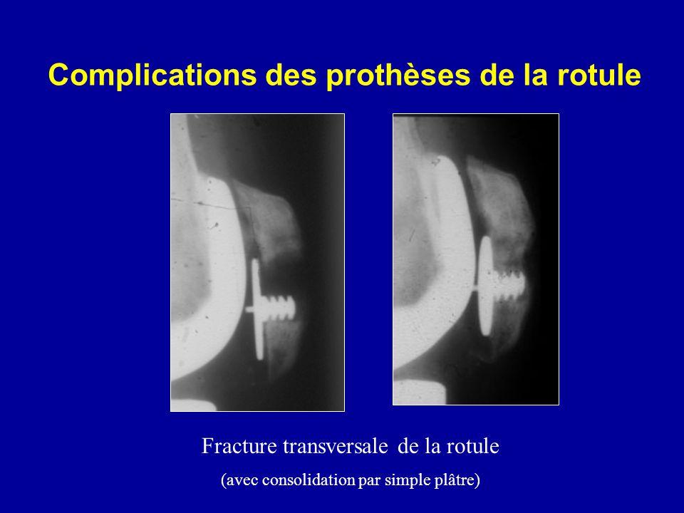 Complications des prothèses de la rotule Fracture transversale de la rotule (avec consolidation par simple plâtre)