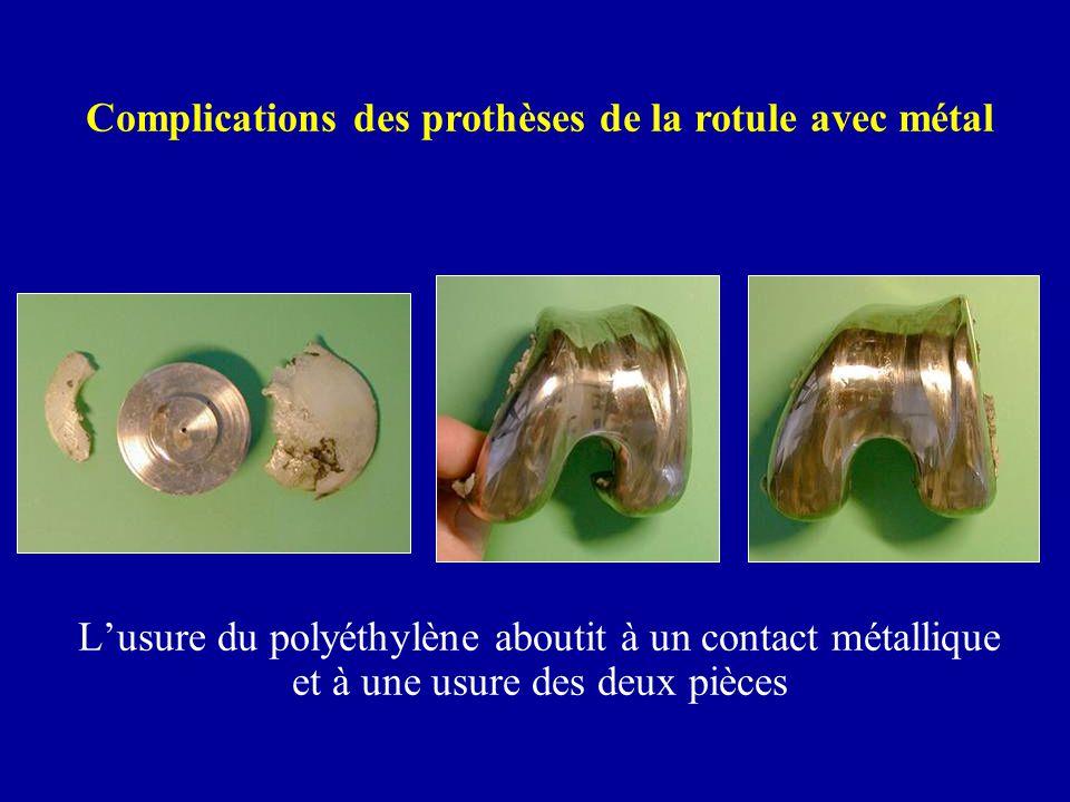 Lusure du polyéthylène aboutit à un contact métallique et à une usure des deux pièces Complications des prothèses de la rotule avec métal