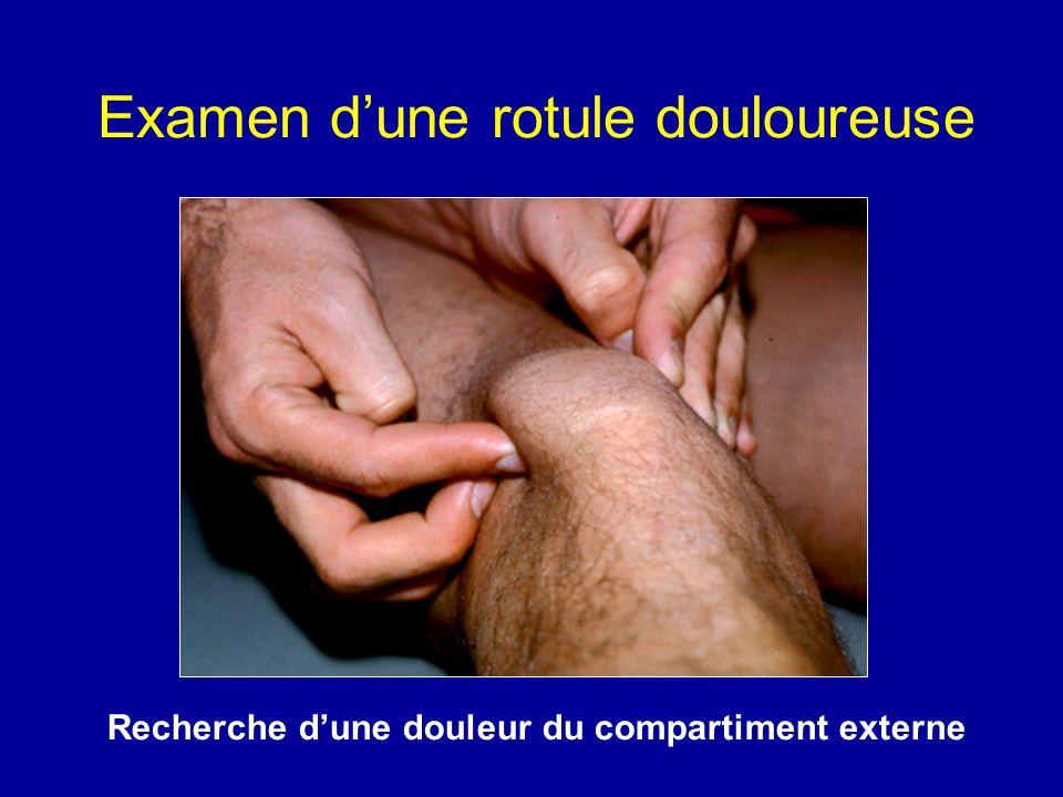 Usure externe de larticulation fémoro-patellaire