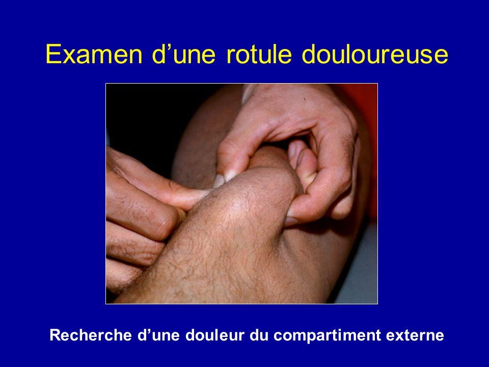Examen dune rotule douloureuse Recherche dune douleur du compartiment externe