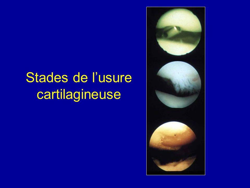 Chondromalacie de la rotule Cartilage ramolli avec des fissures profondes