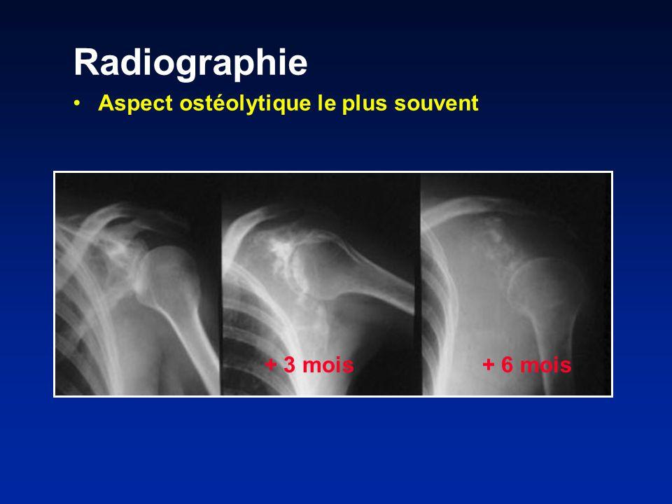 + 3 mois+ 6 mois Radiographie Aspect ostéolytique le plus souvent