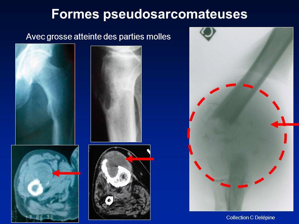 Avec grosse atteinte des parties molles Formes pseudosarcomateuses Collection C Delépine