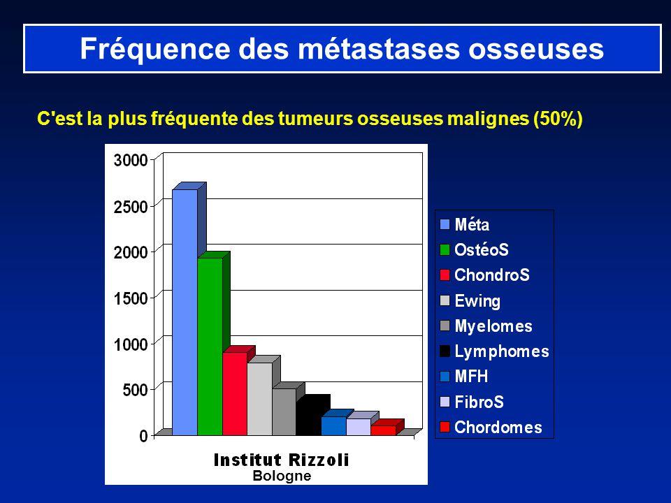 Fréquence des métastases osseuses C est la plus fréquente des tumeurs osseuses malignes (50%) Bologne