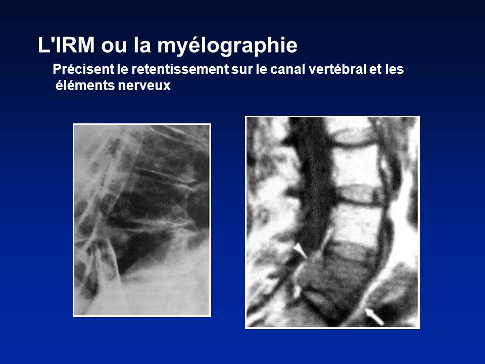 L IRM ou la myélographie Précisent le retentissement sur le canal vertébral et les éléments nerveux